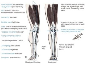 orthotics alignment